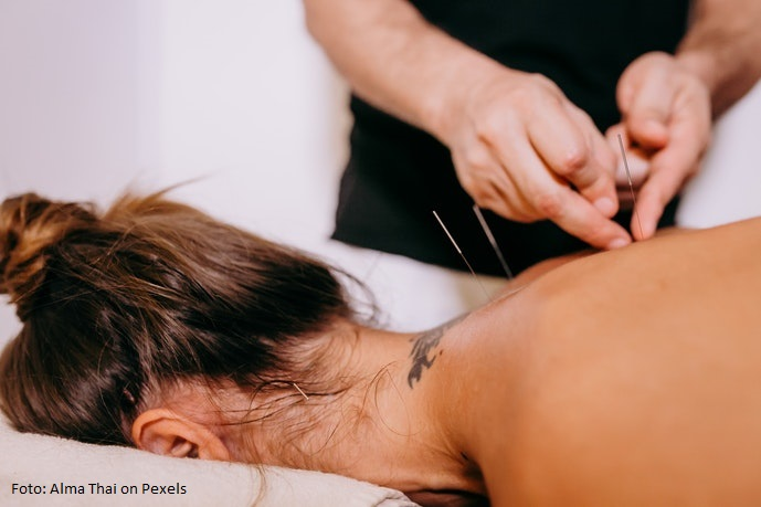 Akupunktur Geburt